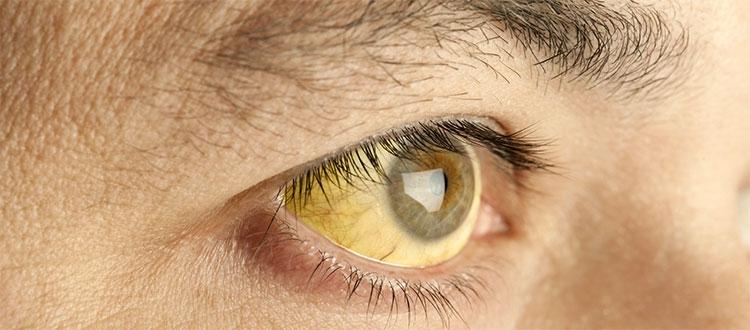 причина желтых белков глаз