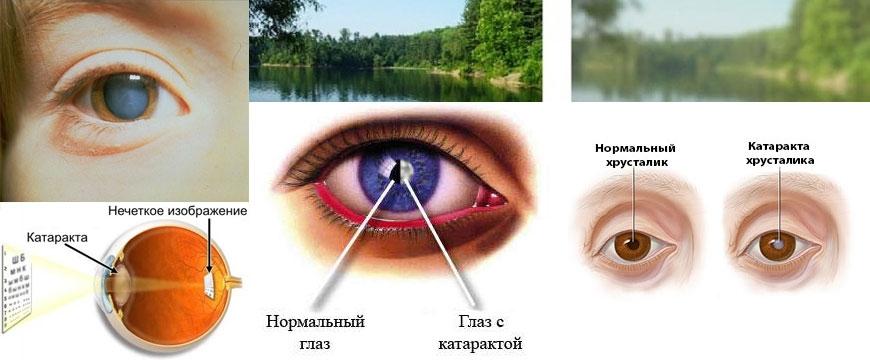 Что такое катаракта глаза и как ее лечить?
