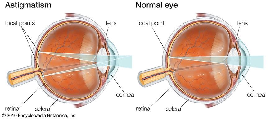 Глазное давления упало зрения